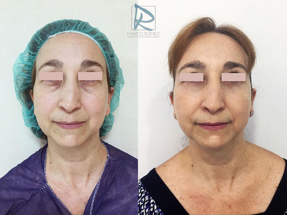 Blefaroplastia Frente - Dr MArco Romeo