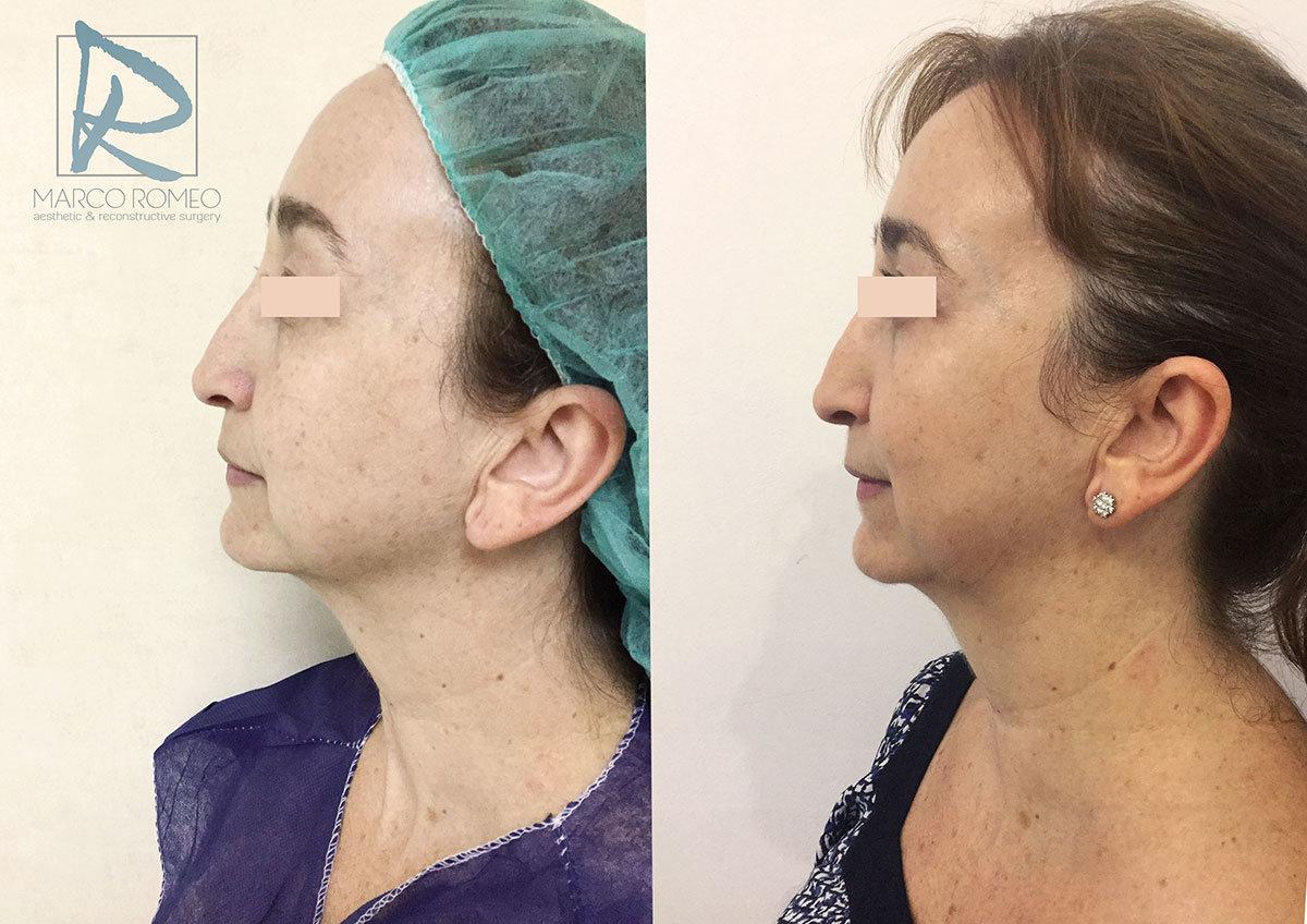 Blefaroplastia Lado - Dr MArco Romeo