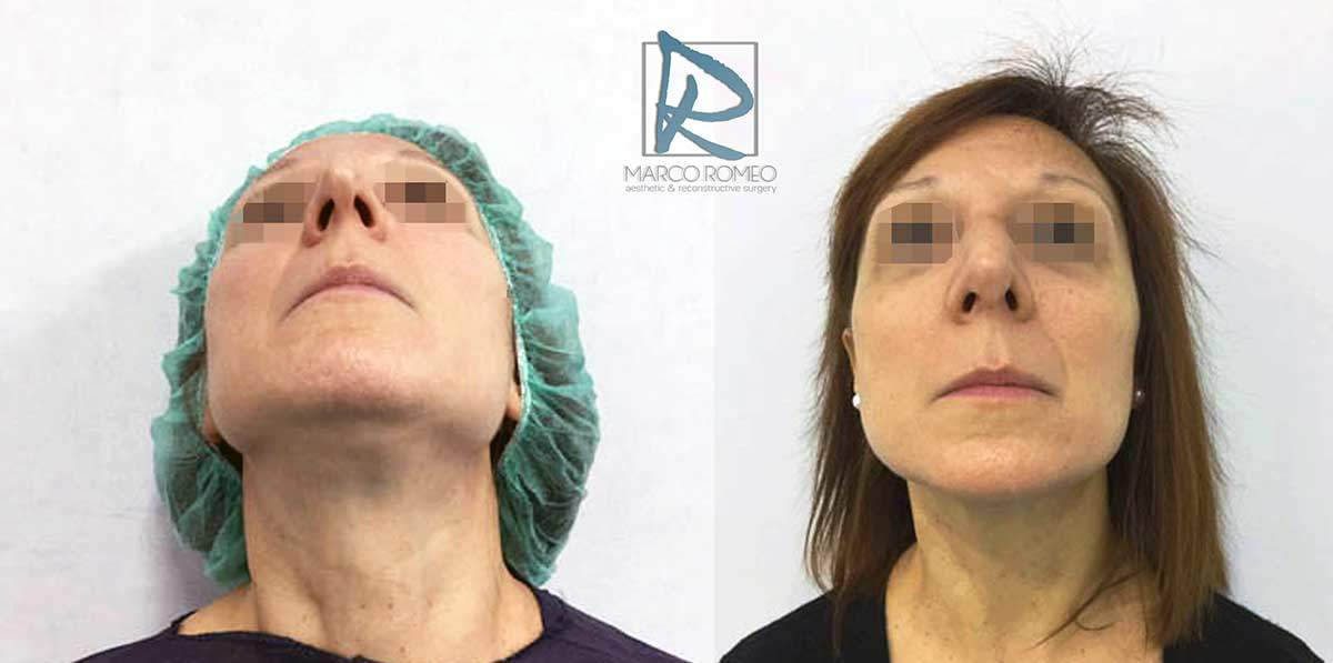 Rhinoplasty Clinic Case 83000 - From below - Dr Marco Romeo