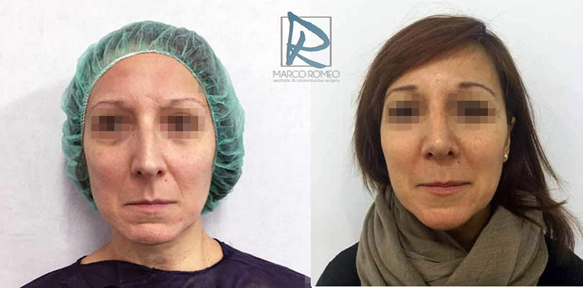 Rhinoplasty Clinic Case 83000 - Front - Dr Marco Romeo