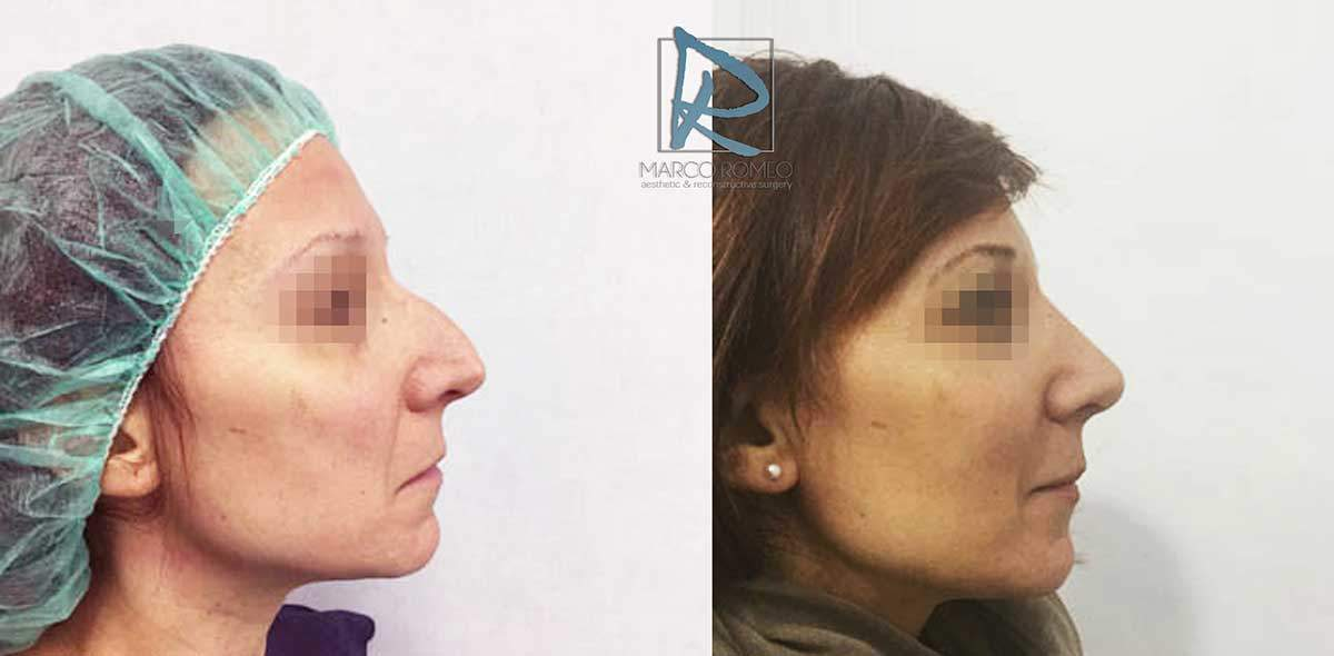 Rhinoplasty Clinic Case 83000 - Side - Dr-Marco-Romeo