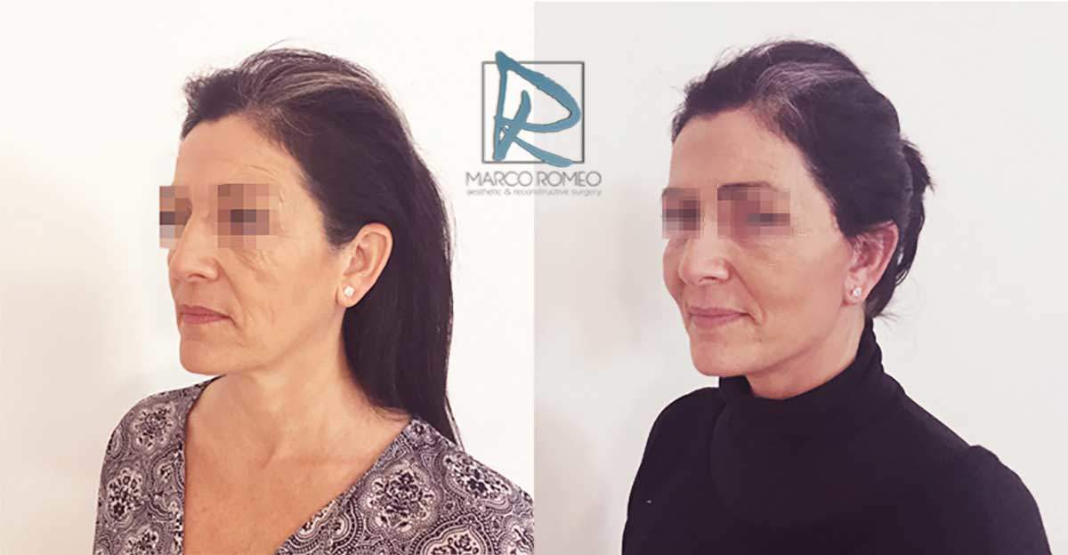 Face Lift - Case 90000 - Left Angle - Dr Marco Romeo