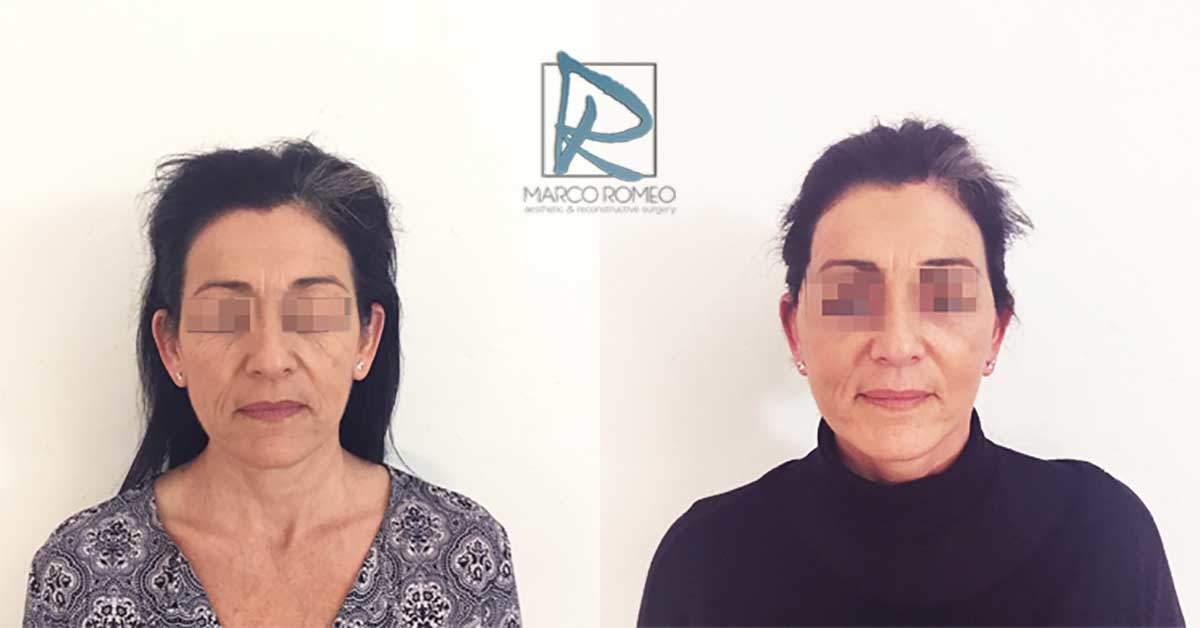 Face Lift - Case 90000 - Front - Dr Marco Romeo