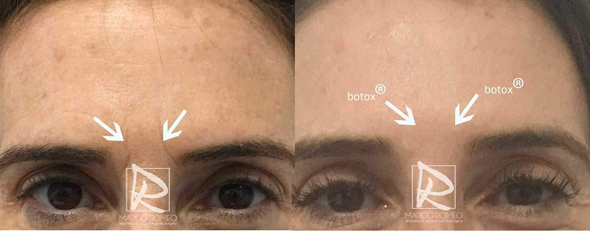 Botox Front - Dr Marco Romeo