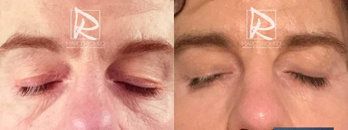 Blefaroplastia Superior y Corrección de Ptosis Unilateral Congenita - Ojos cerrados - Dr Marco Romeo