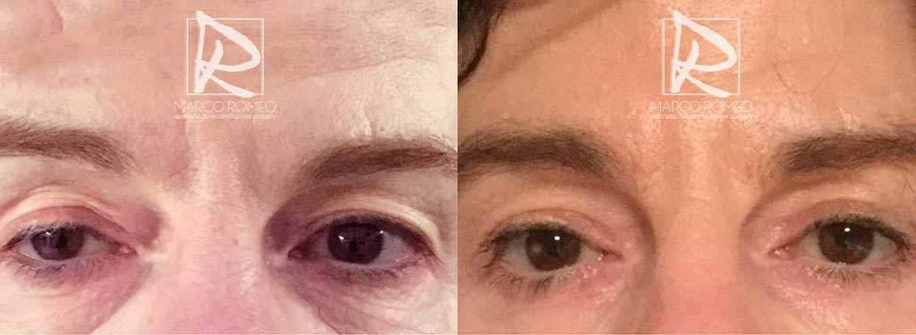 Blefaroplastia Superior y Corrección de Ptosis Unilateral Congenita - Ojos abiertos - Dr Marco Romeo