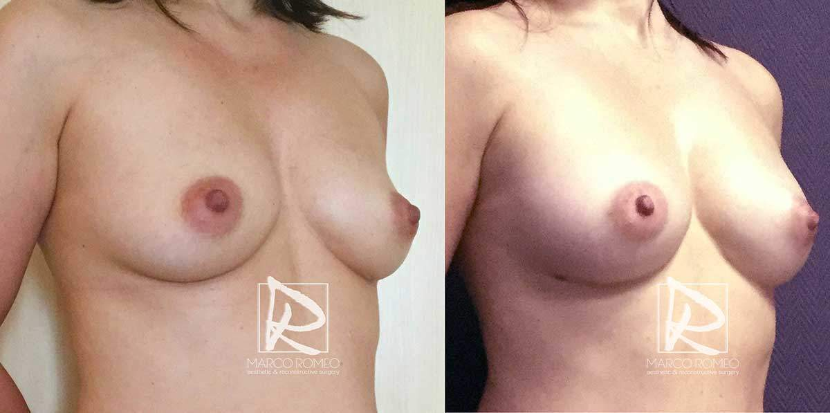 Breast Augmentation - Right Angle - Dr Marco Romeo