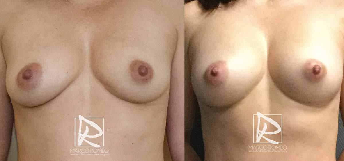 Aumento de mama - Frente - Dr Marco Romeo