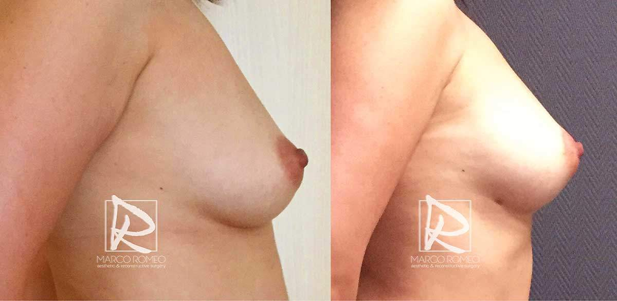 Breast Augmentation - Right Side - Dr Marco Romeo