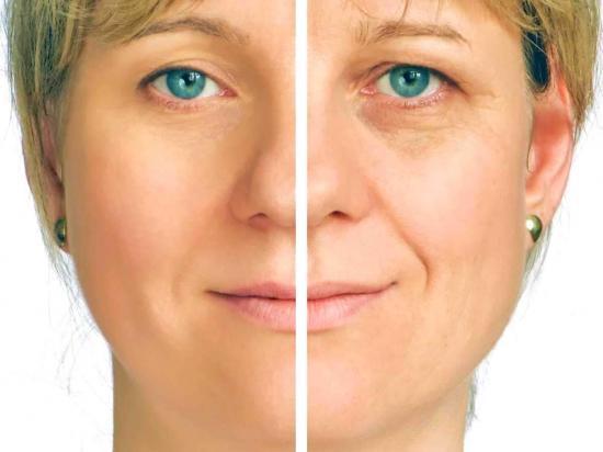 Guía completa Lifting facial - Dr Marco Romeo