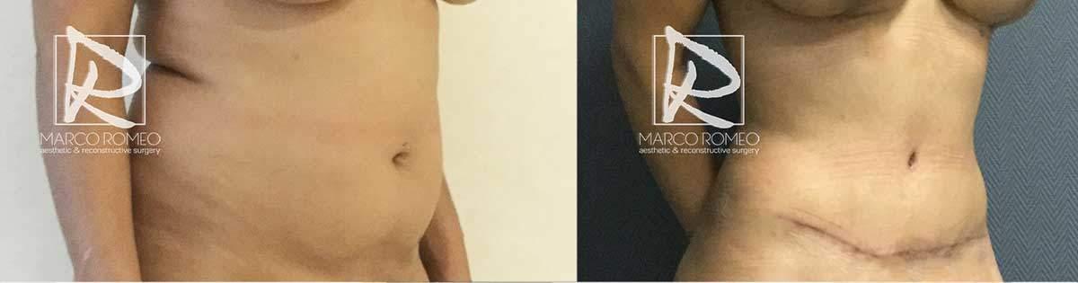 Abdominoplastia-70000-Barriga-Ángulo-Derecho---Dr-Marco-Romeo
