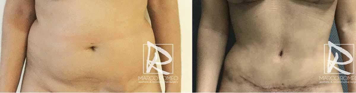 Abdominoplastia-70000-Barriga-Frente---Dr-Marco-Romeo