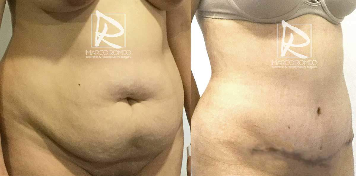 Abdominoplastia-MPRO37-Ángulo-Derecho--Dr-Marco-Romeo