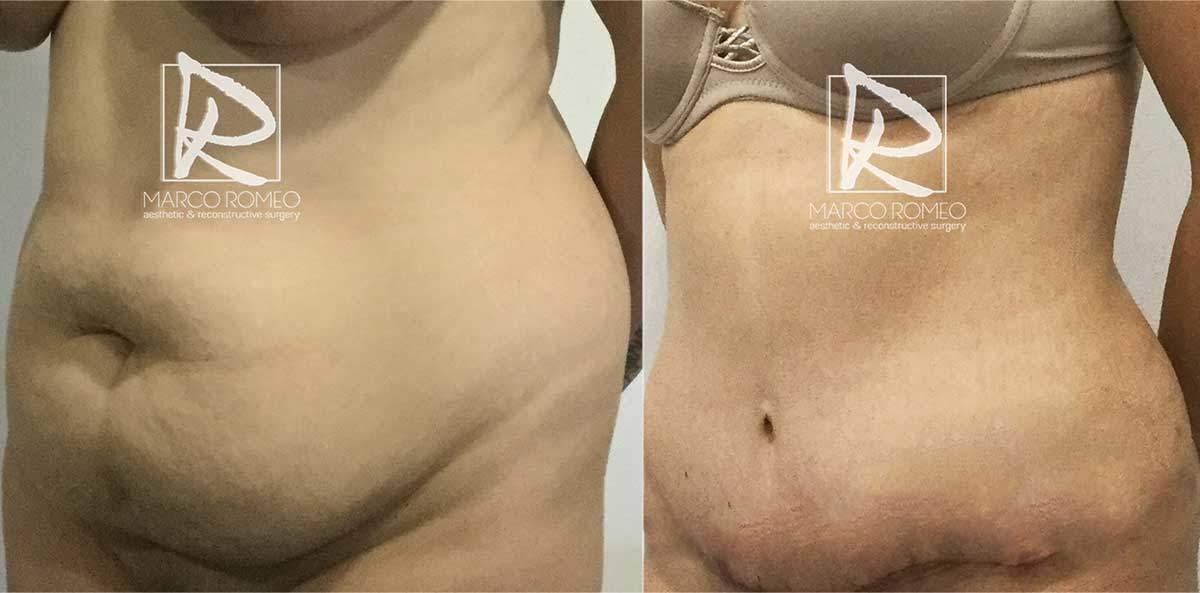 Abdominoplastia-MPRO37-Ángulo-Izquierdo--Dr-Marco-Romeo