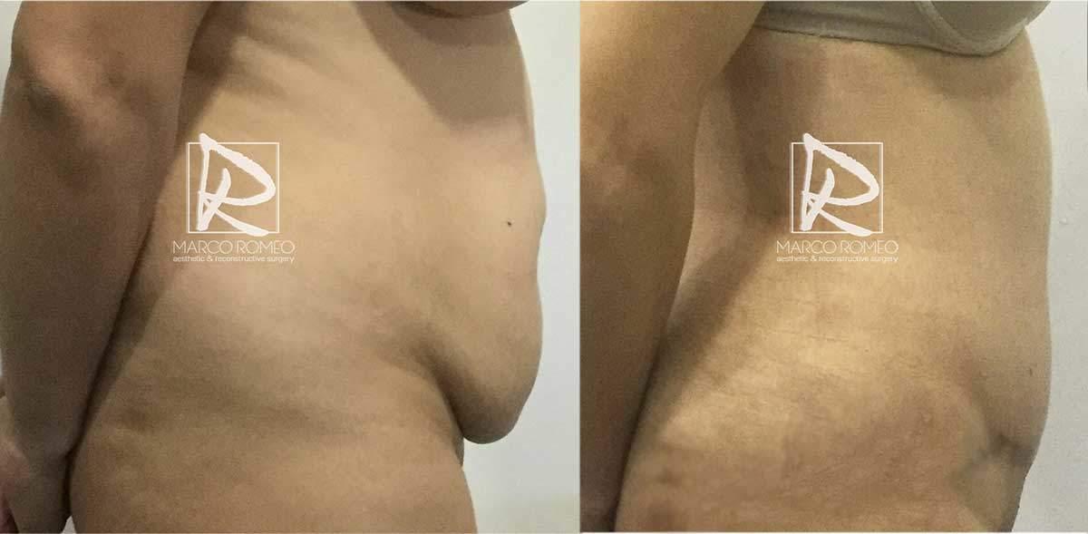 Abdominoplastia-MPRO37-Derecha--Dr-Marco-Romeo