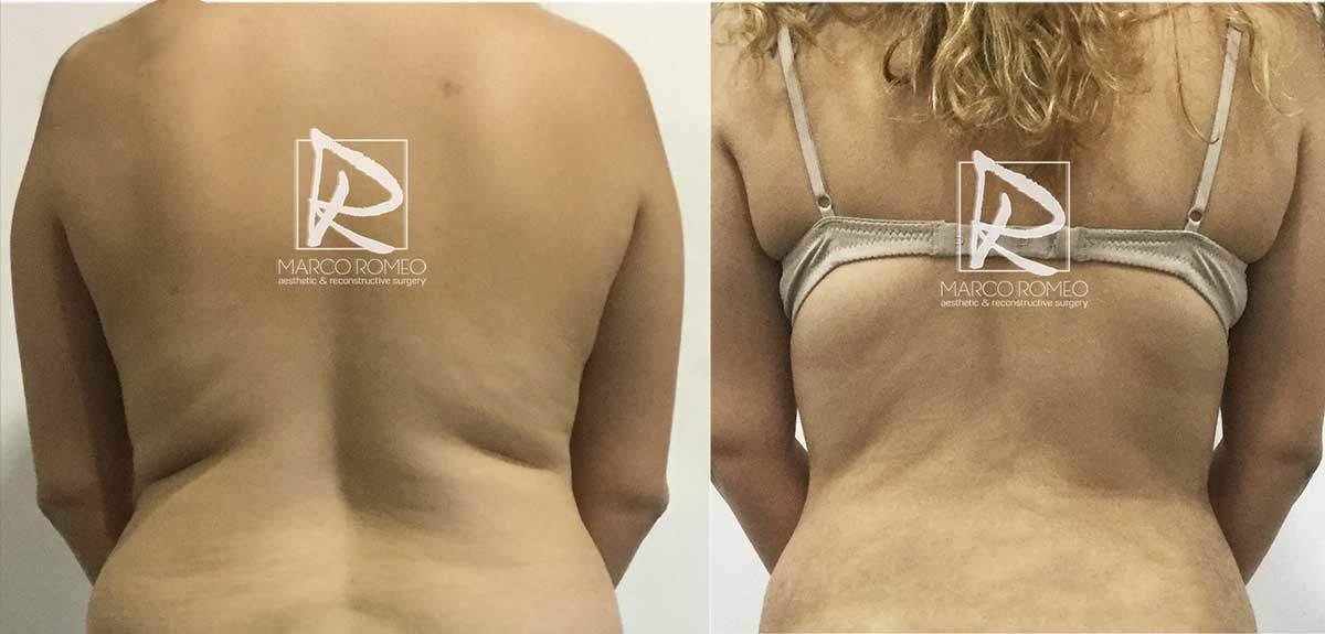 Abdominoplastia-MPRO37-Espalda--Dr-Marco-Romeo