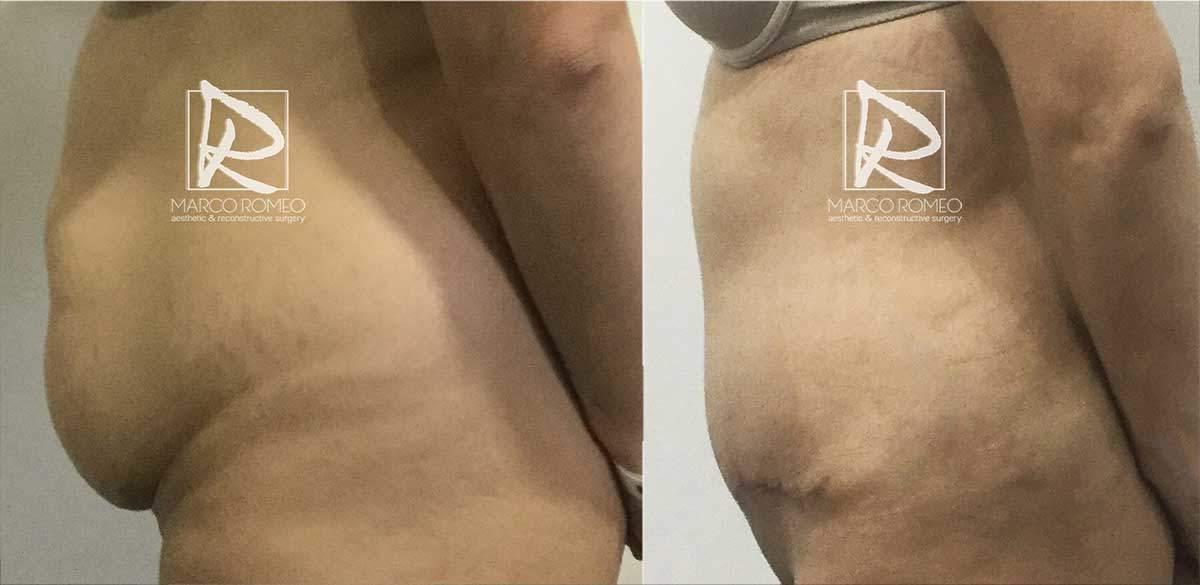 Abdominoplastia-MPRO37-Izquierda--Dr-Marco-Romeo
