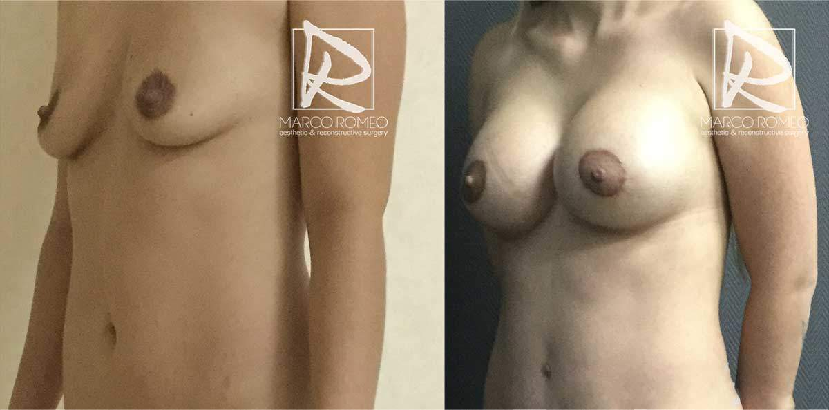 Mommy Makeover 52000 - Ángulo Izquierdo - Dr Marco Romeo