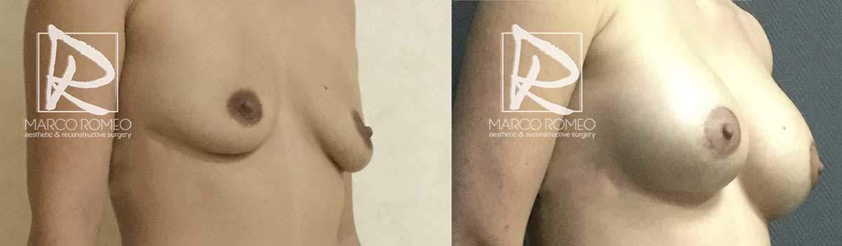 Aumento Mamario 5200 - Ángulo Derecho - Dr Marco Romeo
