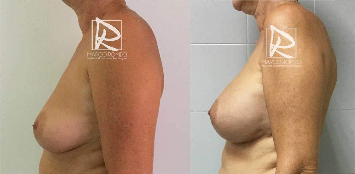 Aumento Mamario - Lado Izquierdo - Dr Marco Romeo