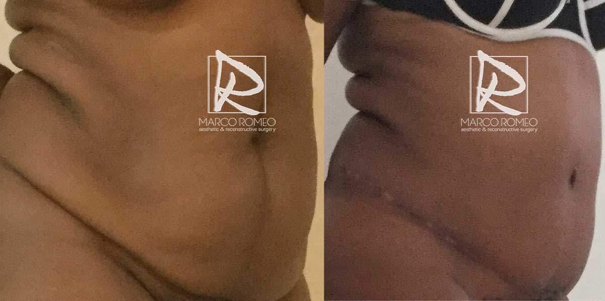 Lipoabdominoplastia 72000 - Ángulo Derecho - Dr Marco Romeo