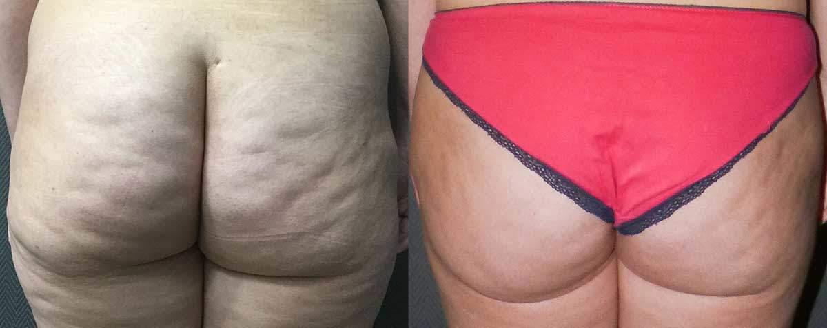 Tratamiento Piel de Naranja - Antes y Después 1 - Dr Marco Romeo
