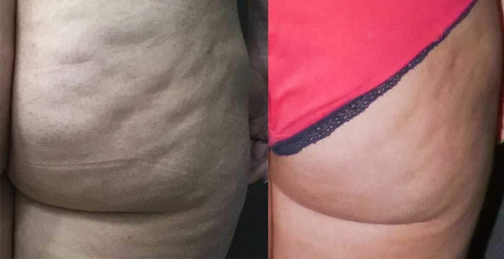 Tratamiento Piel de Naranja - Antes y Después 2 - Dr Marco Romeo