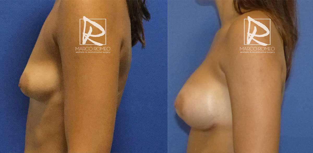 Aumento de Mamas - Lado Izquierdo - Dr Marco Romeo