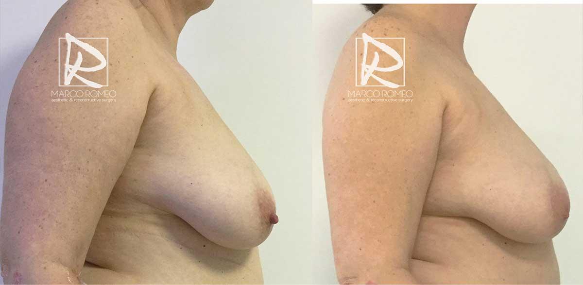 Reconstrucción mamaria - Lado Derecho - Dr Marco Romeo