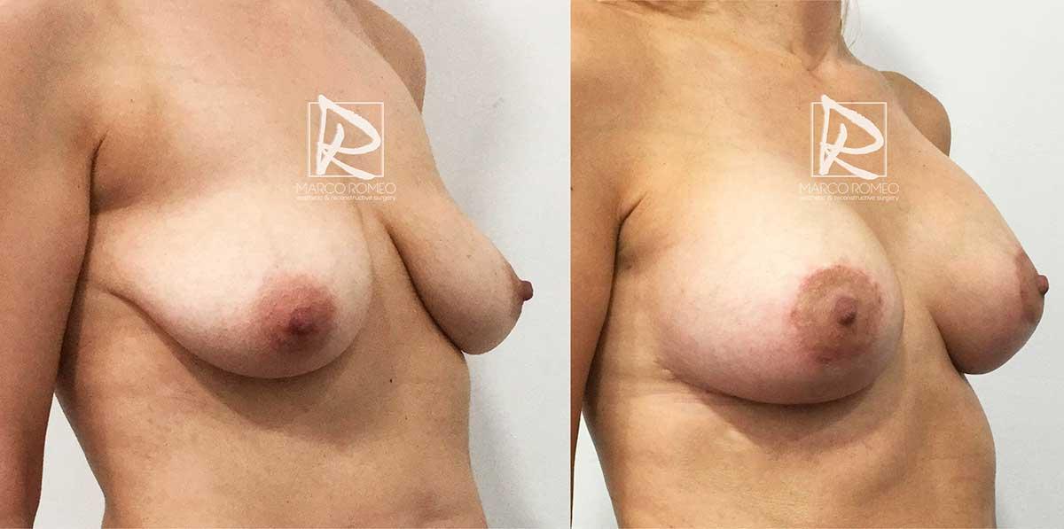 Mastopexia con Implantes 50400 - Ángulo Izquierdo - Dr Marco Romeo