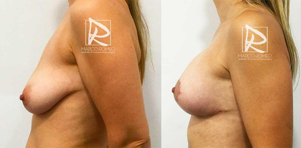Mastopexia con Implantes 50400 - Lado Izquierdo - Dr Marco Romeo