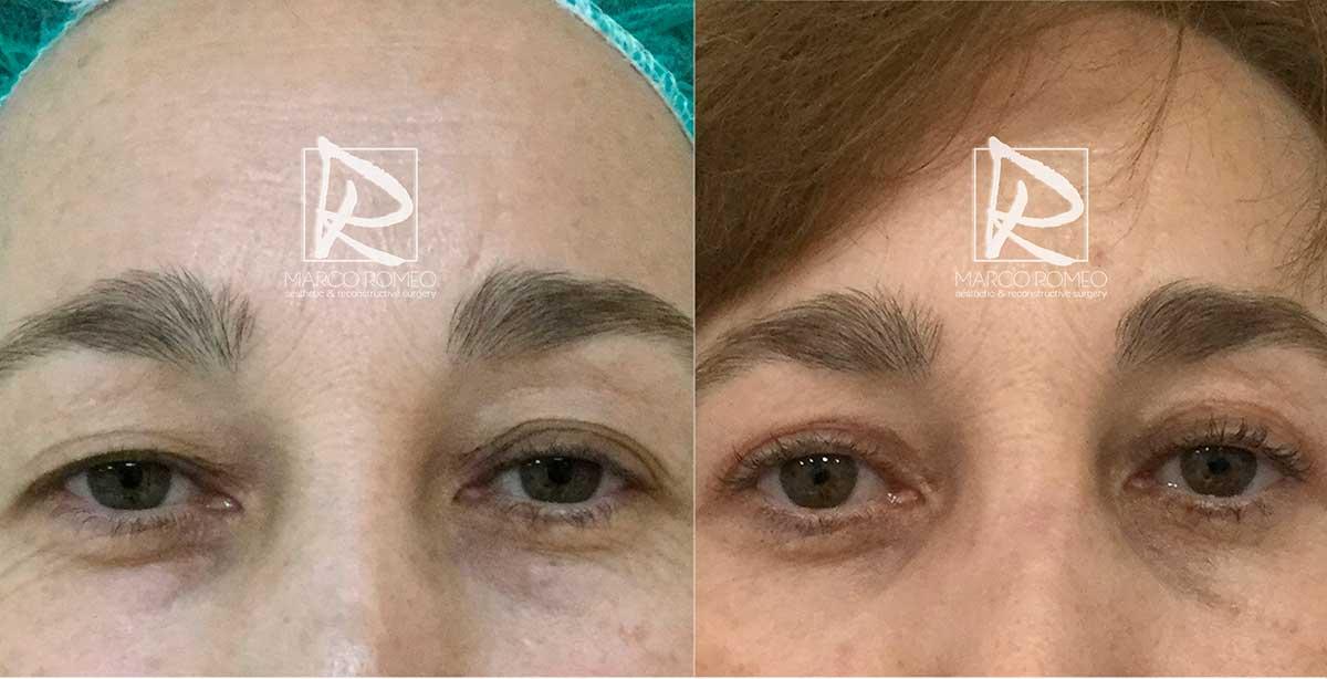 Blefaroplastia 10122 - Antes y Después - Frente - Dr Marco Romeo