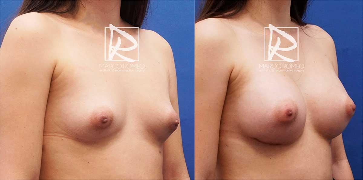 Aumento mamario ángulo derecho - dr marco romeo