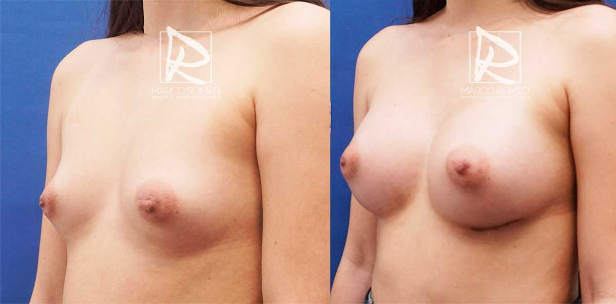 Aumento mamario ángulo izquierdo - dr marco romeo