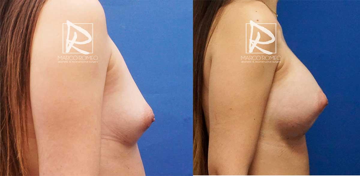 Aumento mamario lado derecho - dr marco romeo