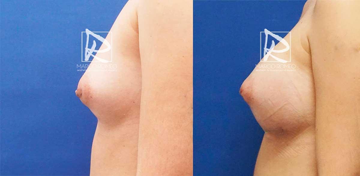 Aumento mamario lado izquierdo - dr marco romeo