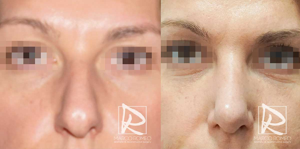 Rinoplastia Ultrasónica - Frente - Dr. Marco Romeo