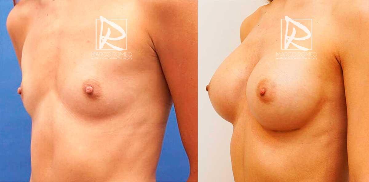 Aumento de Mama - Antes y Después - Ángulo izquierdo - Dr Marco Romeo