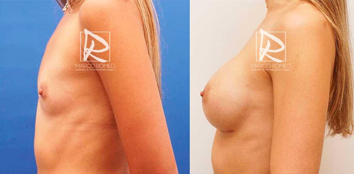 Aumento de Mama - Antes y Después - Lado izquierdo - Dr Marco Romeo