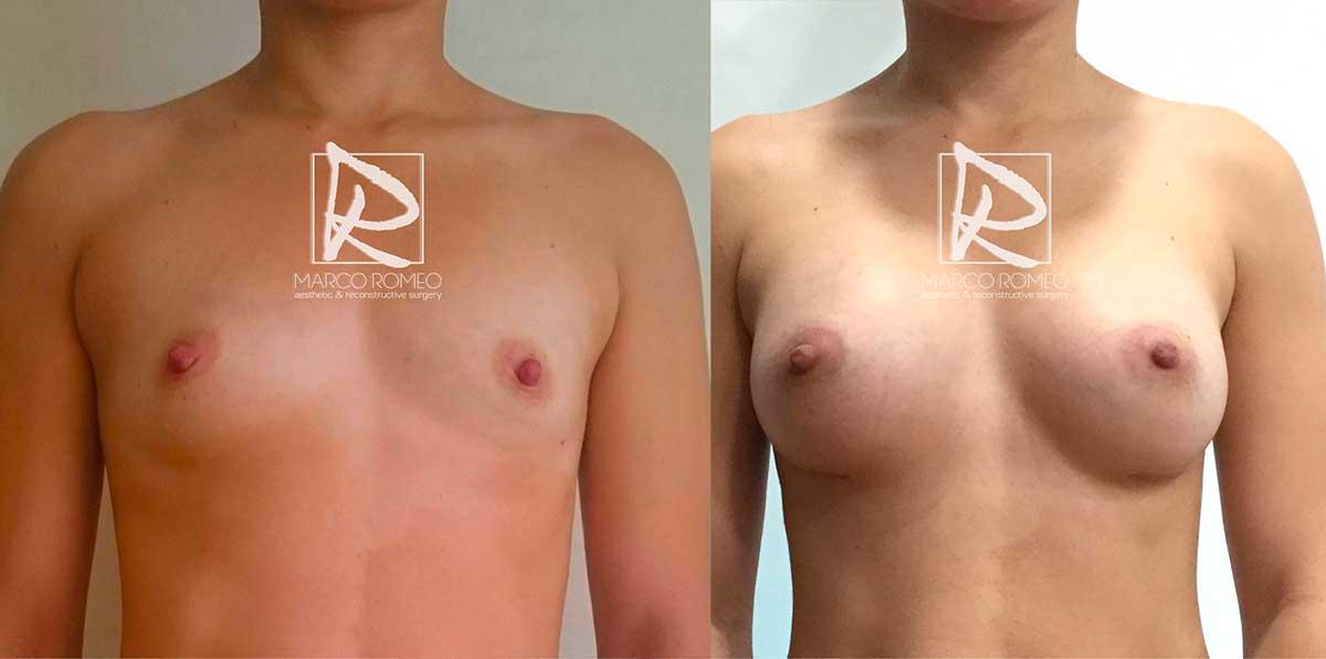 Aumento de mamario frente - Dr Marco Romeo