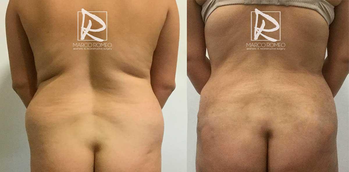 Abdominoplastia Espalda - Dr Marco Romeo