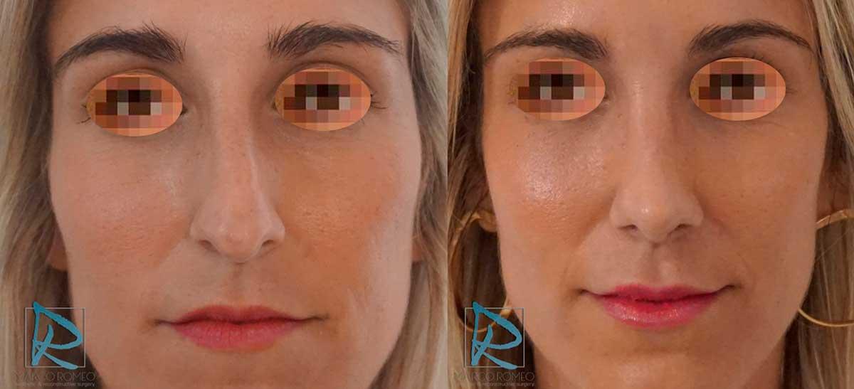 Rinoplastia - Antes y Después - Frente - Dr Marco Romeo