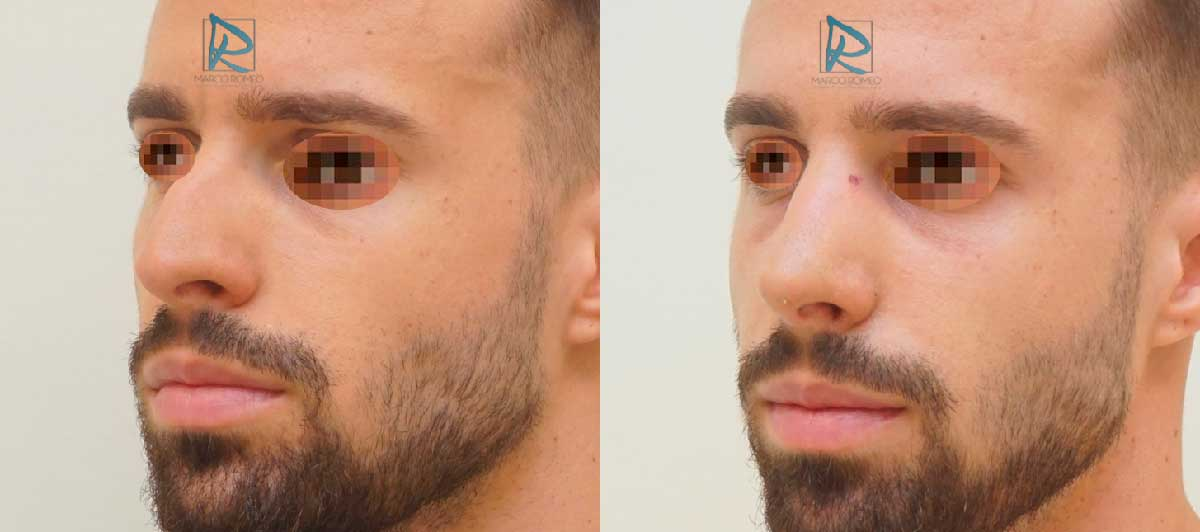 Rinoplastia - Ángulo Izquierdo - Antes y Después - Dr Marco Romeo