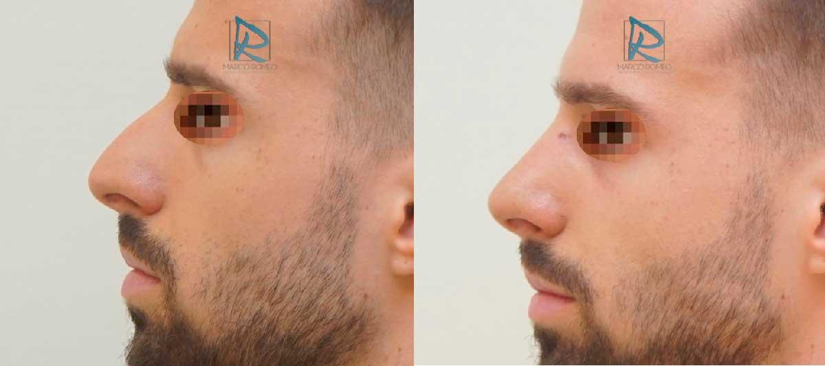 Rinoplastia - Lado Izquierdo - Antes y Después - Dr Marco Romeo