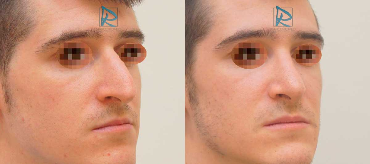 Rinoplastia Ultrasónica - Ángulo Derecho - Antes y Después - Dr Marco Romeo