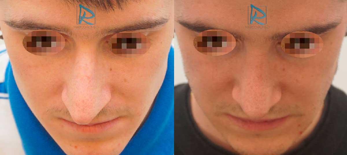 Rinoplastia Ultrasónica - Ángulo Superior - Antes y Después - Dr Marco Romeo