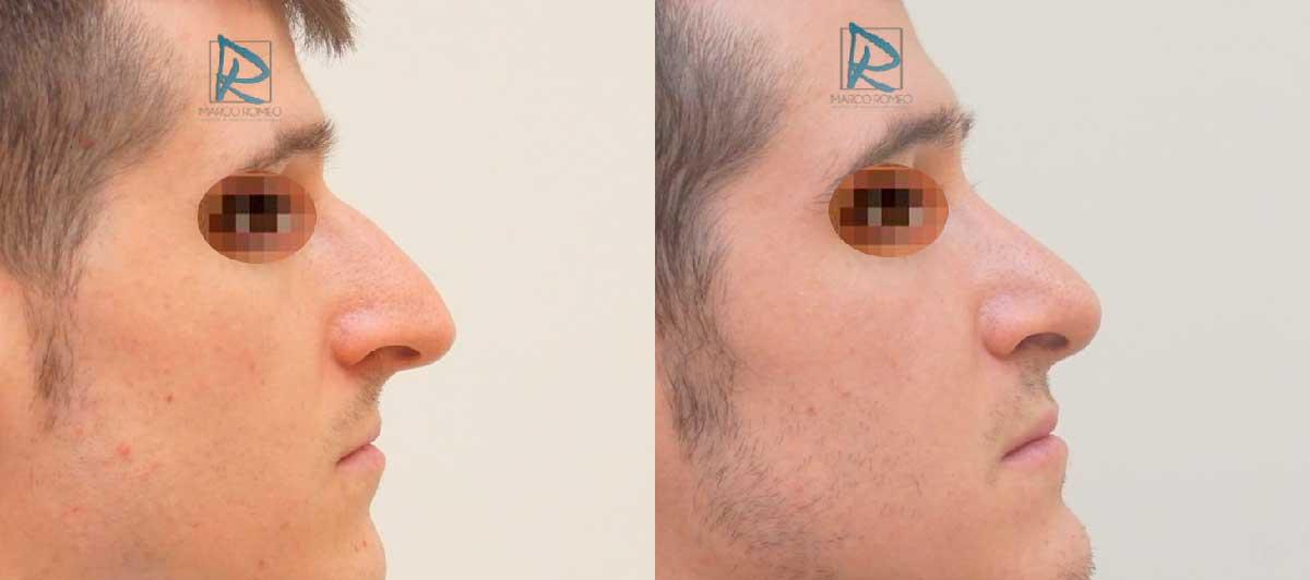 Rinoplastia Ultrasónica - Lado Derecho - Antes y Después - Dr Marco Romeo