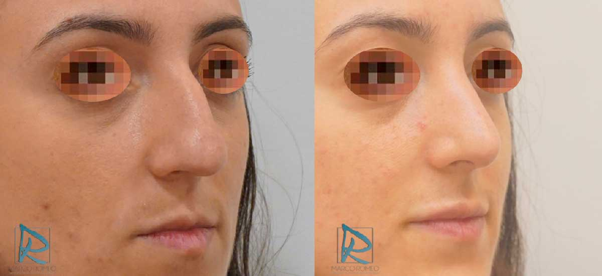 Rinoplastia - Ángulo derecho - Antes y Después - Dr Marco Romeo
