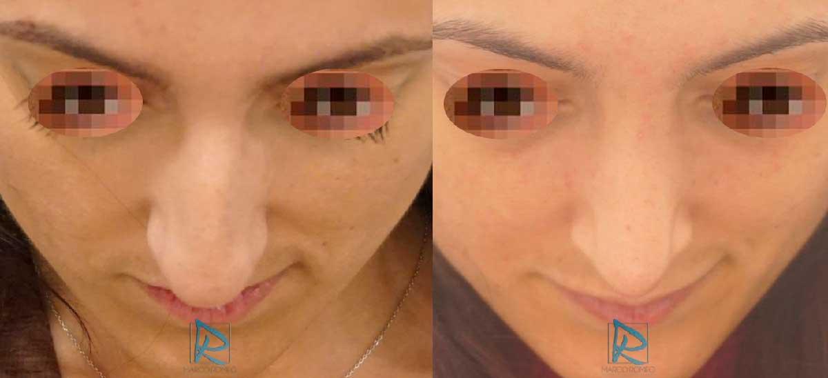 Rinoplastia - Ángulo superior - Antes y Después - Dr Marco Romeo