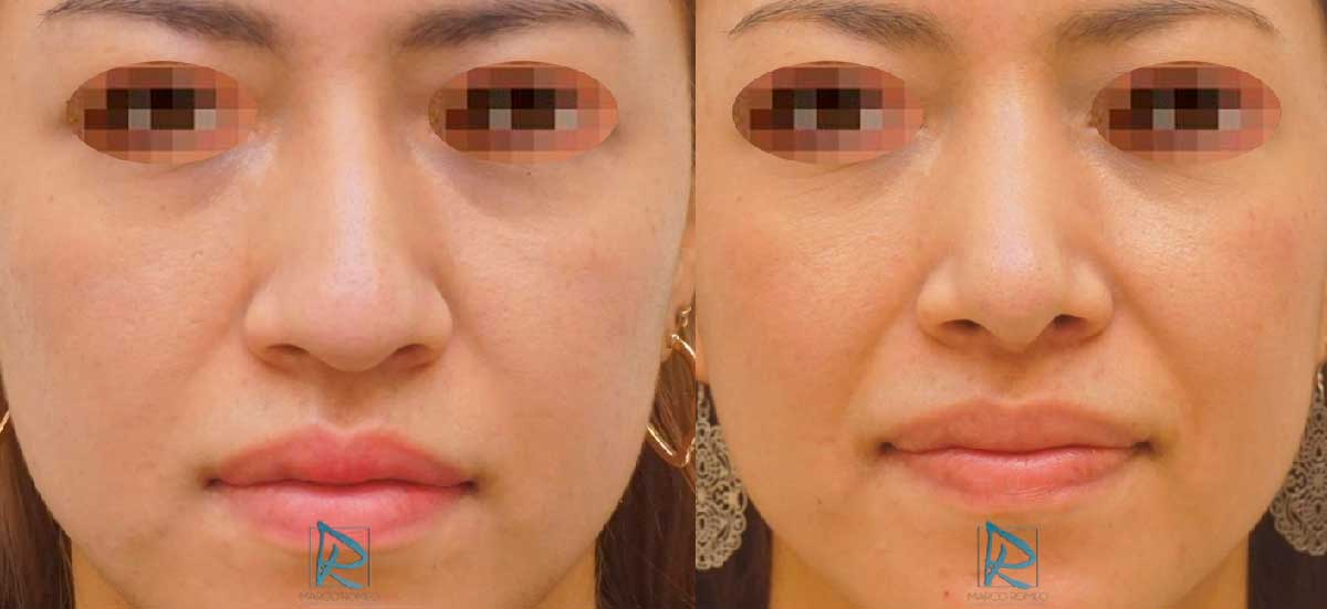 Rinoplastia - Frente -Antes y Después - Dr Marco Romeo